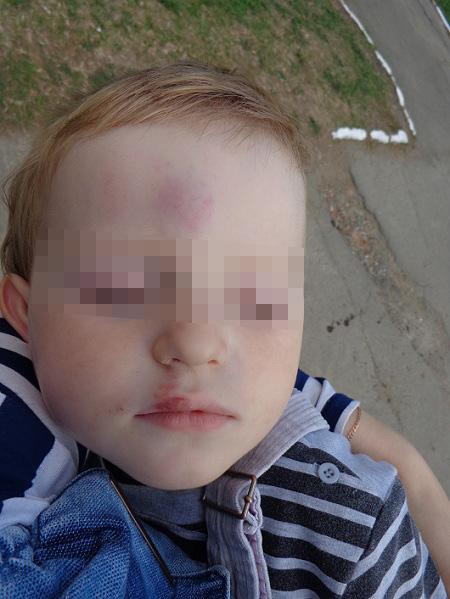 лечить миому ребенок в садике получил травму умные