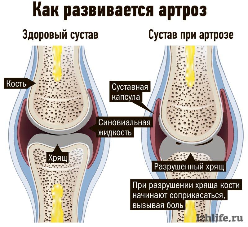 суставы их лечение народными средствами
