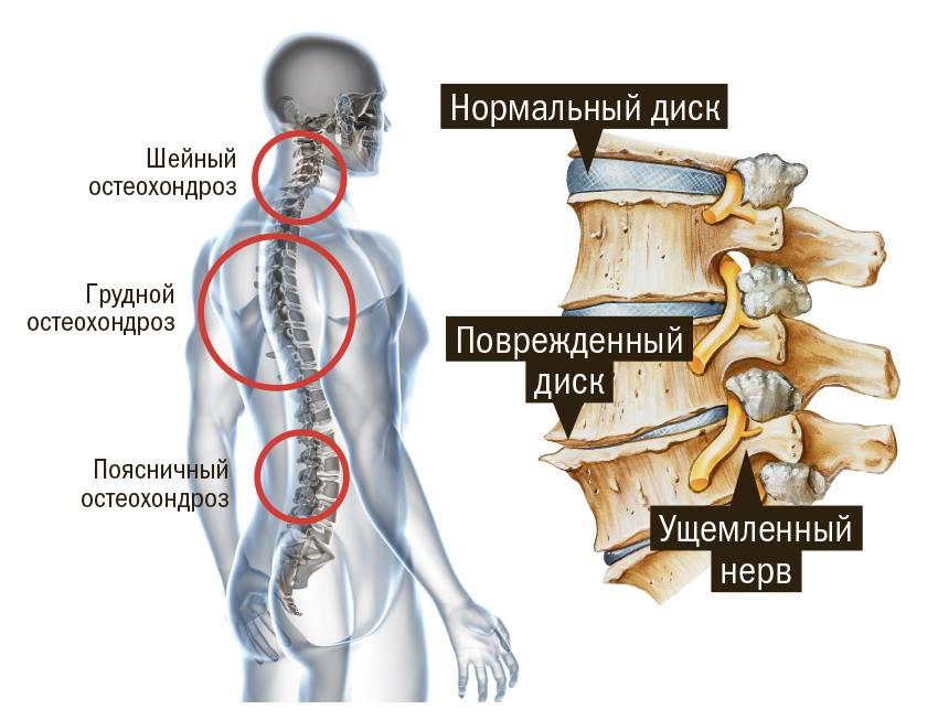Шейный остеохондроз: как лечить традиционными методами и в