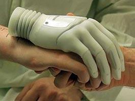Добровольцу из Австрии пришьют бионическую руку