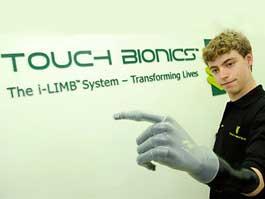 Фанат «Формулы-1» попросил протез руки в обмен на рекламу