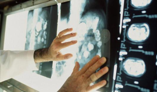Ижевчанок приглашают бесплатно обследоваться на рак груди