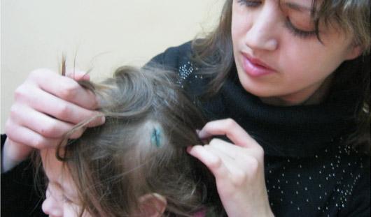 3-летнюю девочку из ижевского детсада увезли на «Скорой» с разбитой головой