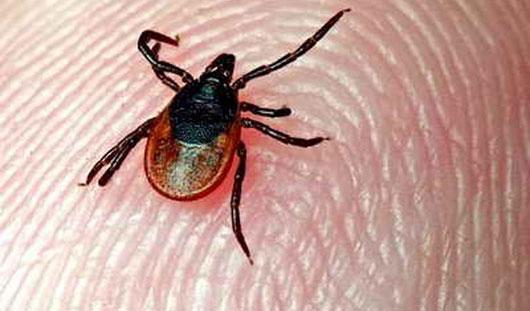 Уже пять жителей Удмуртии пострадали от укусов клещей