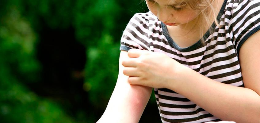 Комариная напасть: в Ижевске горожане переживают «нашествие» комаров и мошек