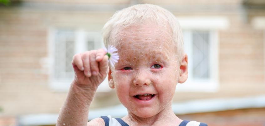 111 167 рублей собрали ижевчане на марафоне «Нужна помощь» для 3-летнего Димы Волкомурова