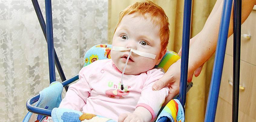 Нужна помощь: девочке с ладошку из Ижевска нужны дорогие аппараты, чтобы дышать