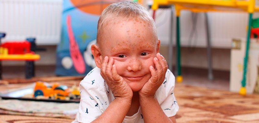 Нужна помощь: 4-летнему Диме с редчайшим заболеванием кожи необходимы лечебные ванны