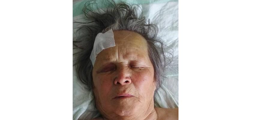 Родственников пострадавшей в ДТП пенсионерки ищут в Ижевске
