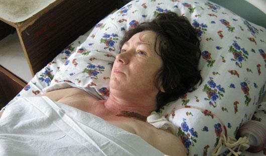 Пассажирка, пострадавшая в поножовщине в ижевском автобусе, почти сутки провела в реанимации