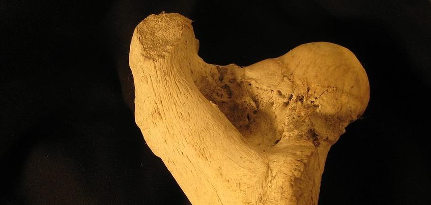 Жительница Удмуртии захоронила ампутированную ногу родственника
