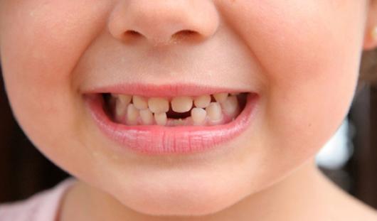 Детская неожиданность: почему выпадают молочные зубы?