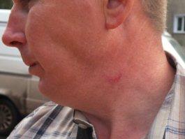 Последствия грозы в Ижевске: есть пострадавшие